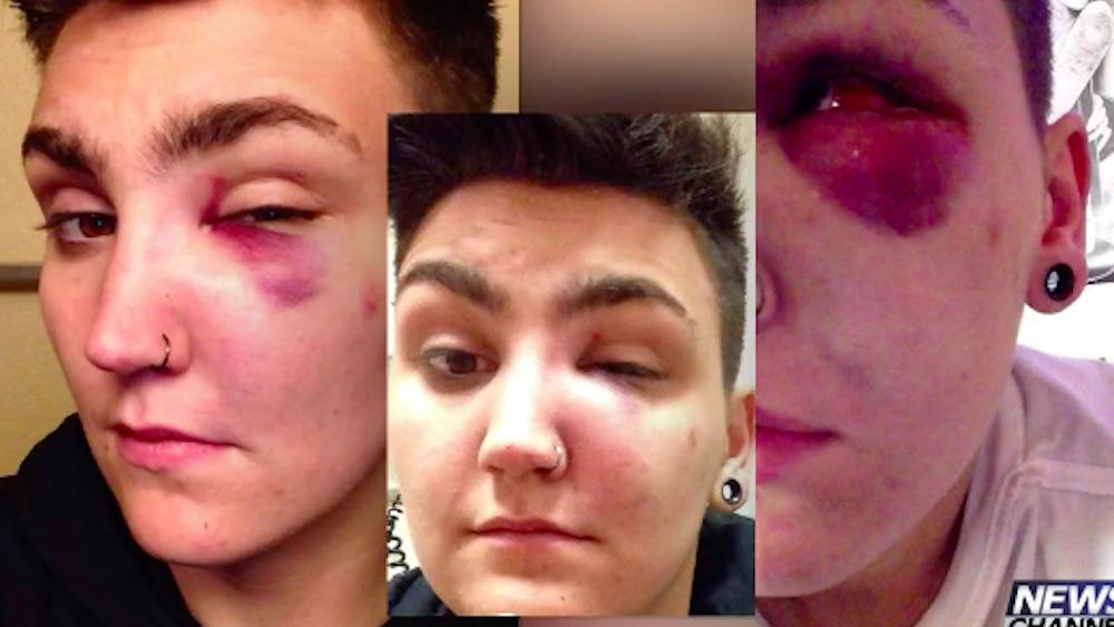 Emmitt Davis, Colorado Springs, transgender, attack