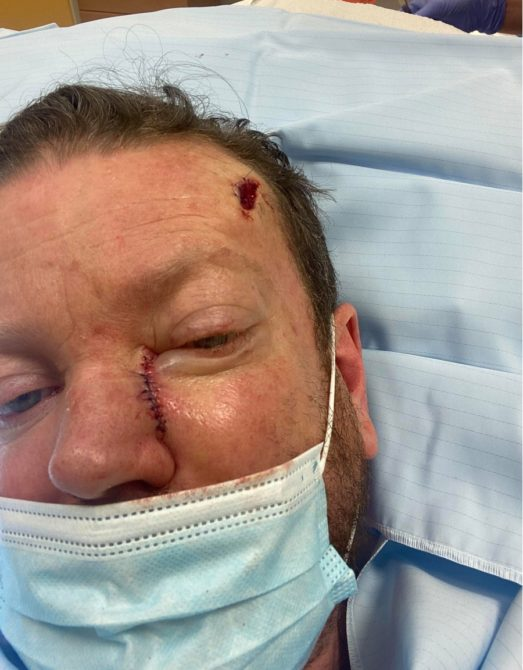 Wayne G is being treated for skin cancer